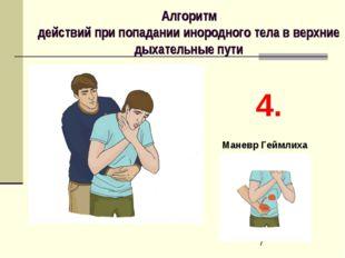 Алгоритм действий при попадании инородного тела в верхние дыхательные пути 4.
