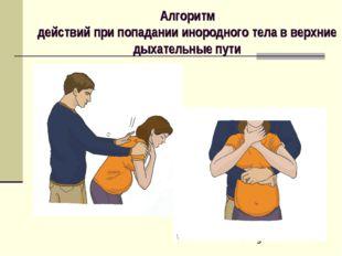 Алгоритм действий при попадании инородного тела в верхние дыхательные пути
