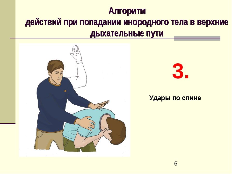 Алгоритм действий при попадании инородного тела в верхние дыхательные пути 3....