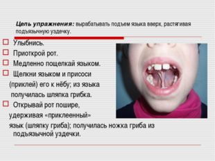 Цель упражнения: вырабатывать подъем языка вверх, растягивая подъязычную узде