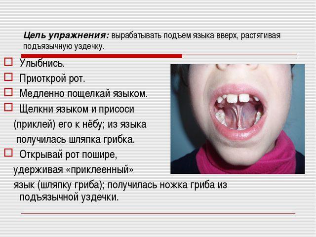 Цель упражнения: вырабатывать подъем языка вверх, растягивая подъязычную узде...