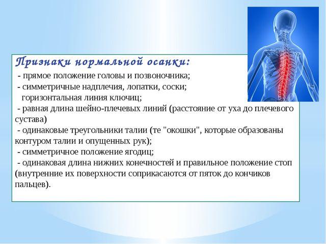 Признаки нормальной осанки: - прямое положение головы и позвоночника; - симме...