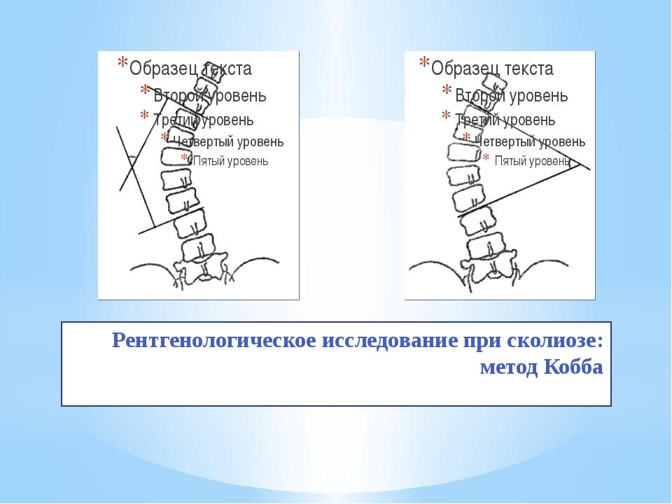 Рентгенологическое исследование при сколиозе: метод Кобба