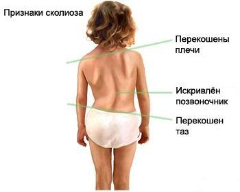 Описание: Описание: http://www.pozvonochnik.org/images/diseases/scoliosis.jpg