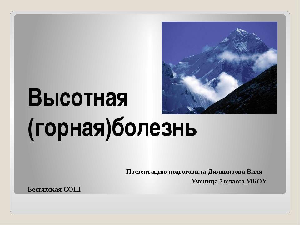 Высотная (горная)болезнь Презентацию подготовила:Дилявирова Виля Ученица 7 к...