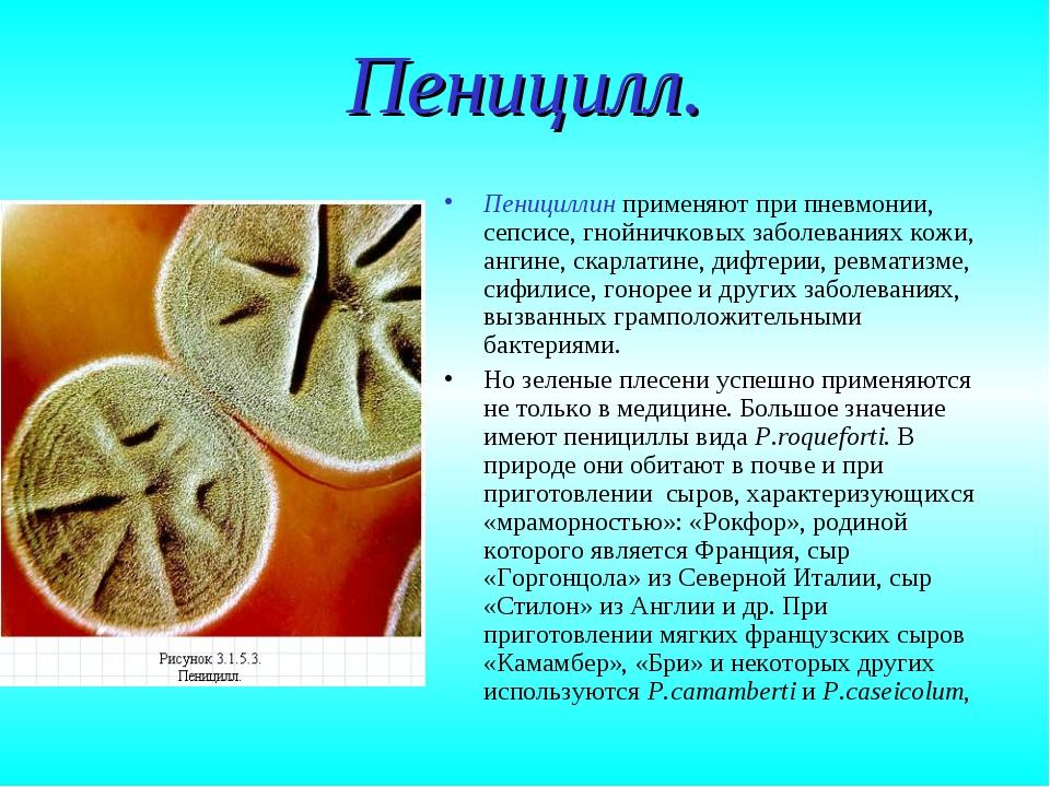 Пеницилл. Пенициллин применяют при пневмонии, сепсисе, гнойничковых заболеван...