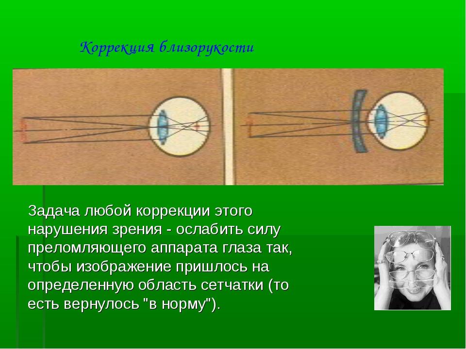 Задача любой коррекции этого нарушения зрения - ослабить силу преломляющего а...
