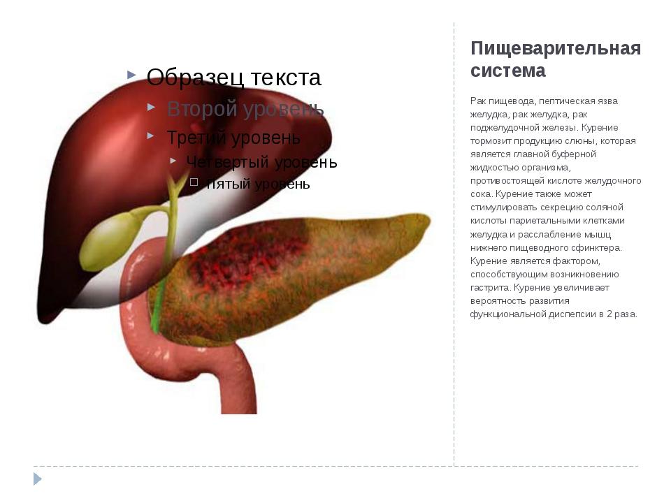 Пищеварительная система Рак пищевода, пептическая язва желудка, рак желудка,...