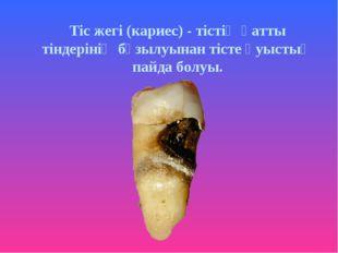 Тіс жегі (кариес) - тістің қатты тіндерінің бұзылуынан тісте қуыстың пайда бо