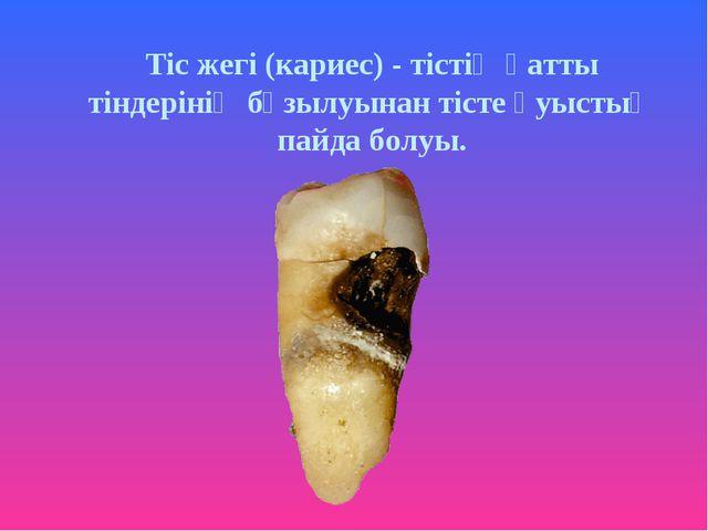 Тіс жегі (кариес) - тістің қатты тіндерінің бұзылуынан тісте қуыстың пайда бо...