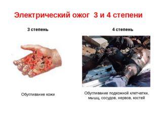 Электрический ожог 3 и 4 степени 4 степень 3 степень Обугливание кожи Обуглив