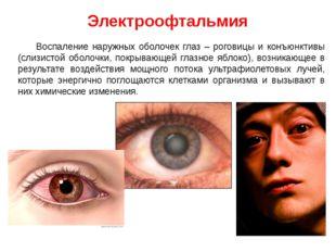 Электроофтальмия Воспаление наружных оболочек глаз – роговицы и конъюнктивы (