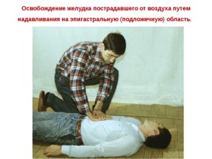 Освобождение желудка пострадавшего от воздуха путем надавливания на эпигастра