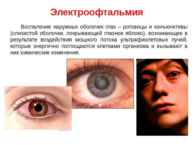 Электроофтальмия Воспаление наружных оболочек глаз – роговицы и конъюнктивы (...