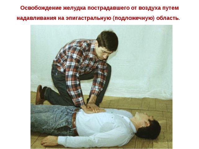 Освобождение желудка пострадавшего от воздуха путем надавливания на эпигастра...