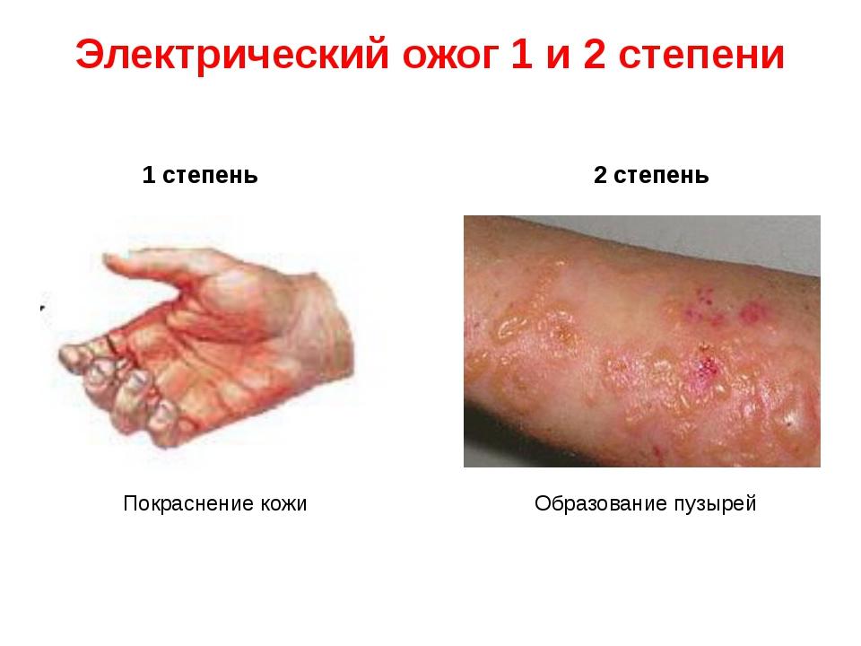 Электрический ожог 1 и 2 степени 1 степень 2 степень Покраснение кожи Образов...