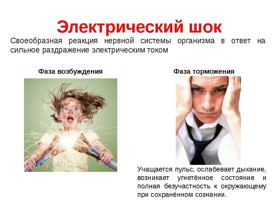 Электрический шок Фаза возбуждения Фаза торможения Своеобразная реакция нервн...