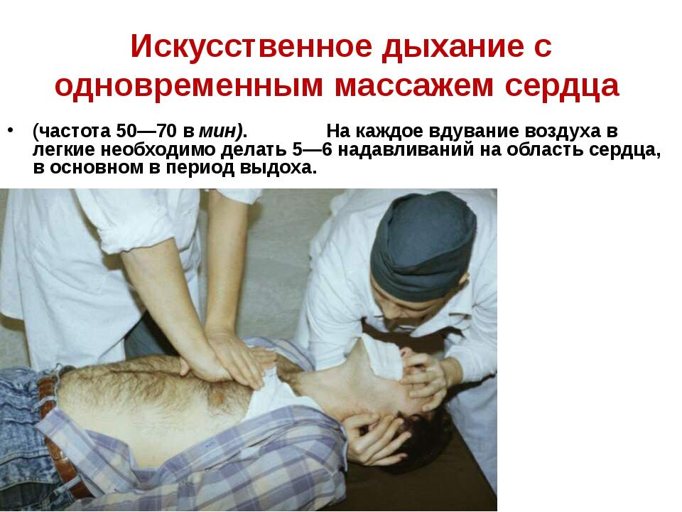 Искусственное дыхание с одновременным массажем сердца (частота 50—70 в мин)....