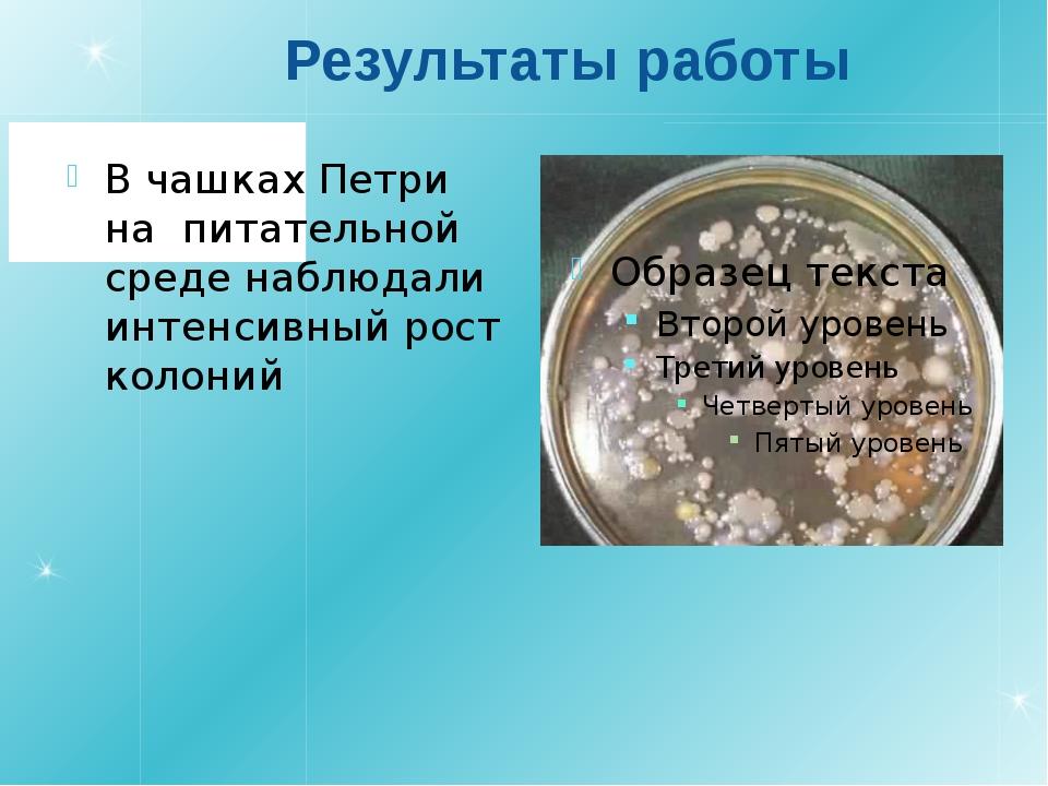 Результаты работы В чашках Петри на питательной среде наблюдали интенсивный р...