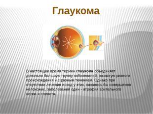 Глаукома В настоящее время терминглаукомаобъединяет довольно большую группу