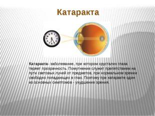 Катаракта Катаракта- заболевание, при котором хрусталик глаза теряет прозрачн