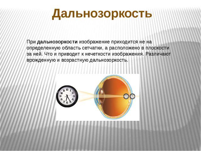 Дальнозоркость Придальнозоркостиизображение приходится не на определенную о...