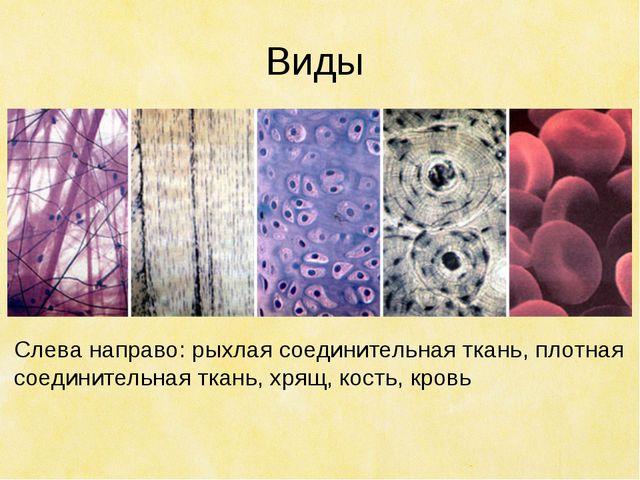 Виды Слева направо: рыхлая соединительная ткань, плотная соединительная ткань...