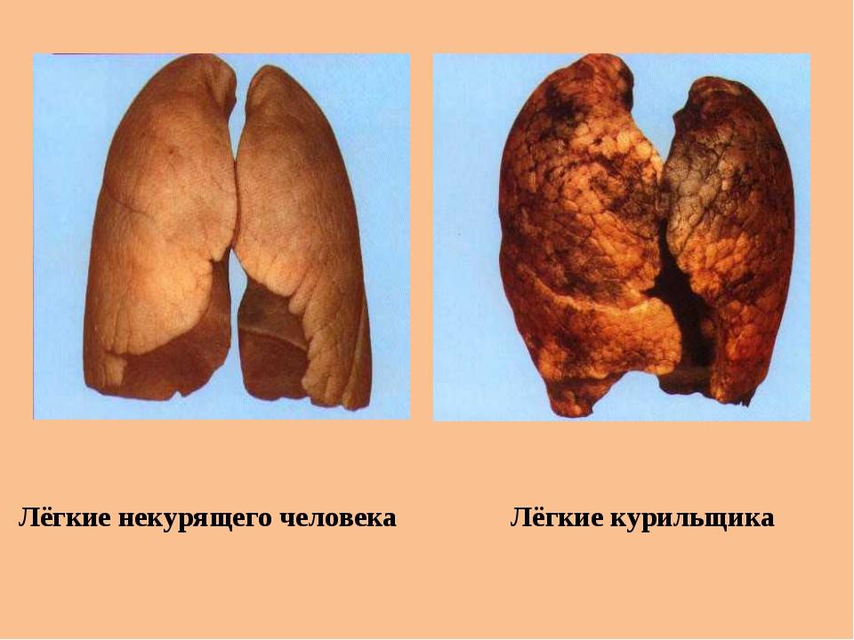 Лёгкие некурящего человека Лёгкие курильщика