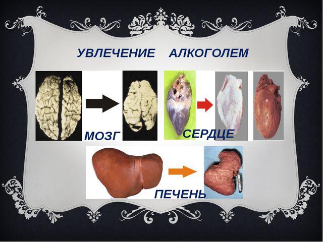 УВЛЕЧЕНИЕ АЛКОГОЛЕМ МОЗГ СЕРДЦЕ ПЕЧЕНЬ