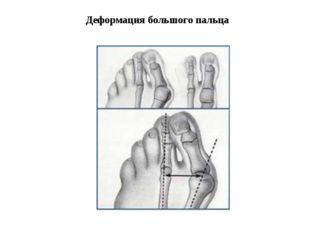 Деформация большого пальца