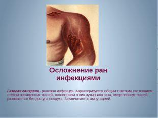 Осложнение ран инфекциями Газовая гангрена - раневая инфекция. Характеризуетс