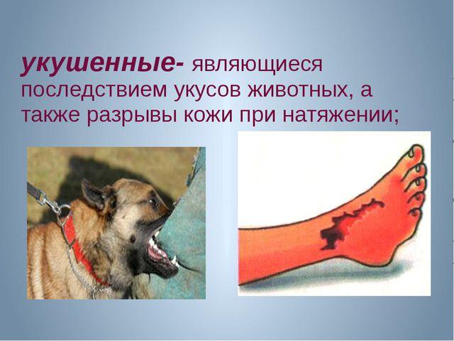укушенные- являющиеся последствием укусов животных, а также разрывы кожи при...