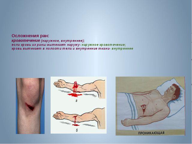 Осложнения ран: кровотечение (наружное, внутреннее); если кровь из раны выте...
