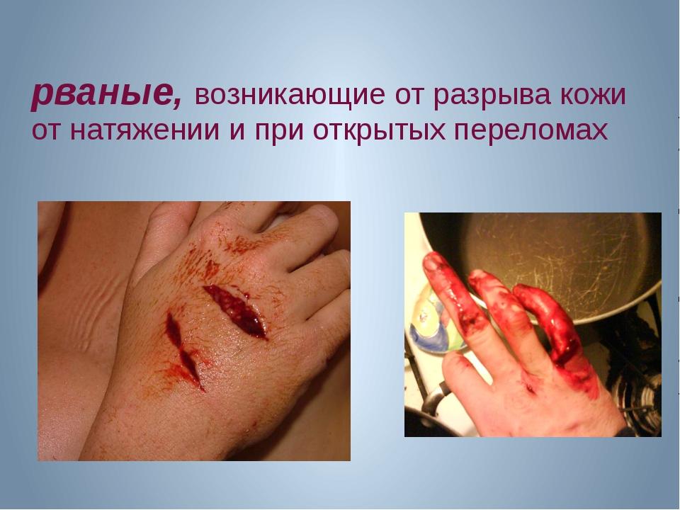 рваные, возникающие от разрыва кожи от натяжении и при открытых переломах