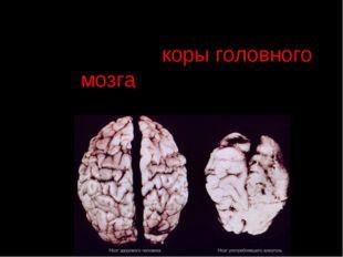 Алкоголь приводит к разрушению коры головного мозга, онемению и последующему