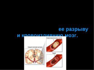 Еще одной причиной инсульта у курильщиков может стать поражение артерии голов