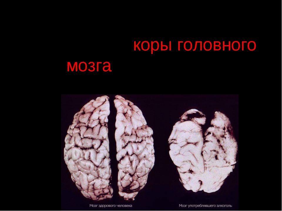 Алкоголь приводит к разрушению коры головного мозга, онемению и последующему...