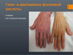 Гипо- и авитаминоз фолиевой кислоты Анемия (не злокачественная)