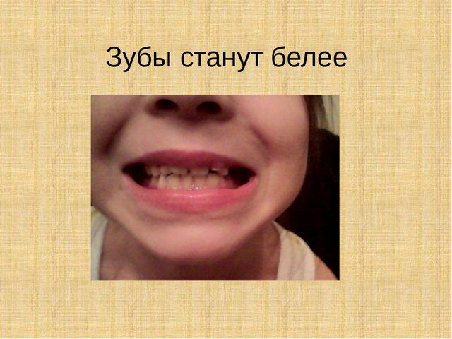 Зубы станут белее