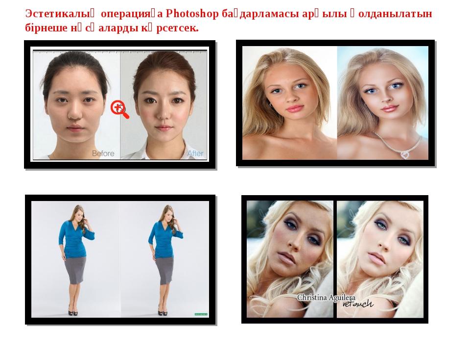 Эстетикалық операцияға Photoshop бағдарламасы арқылы қолданылатын бірнеше нұс...