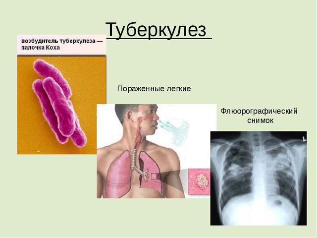 Туберкулез Пораженные легкие Флюорографический снимок