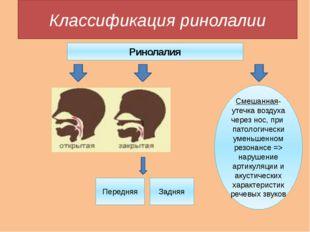 Классификация ринолалии Ринолалия Смешанная- утечка воздуха через нос, при па