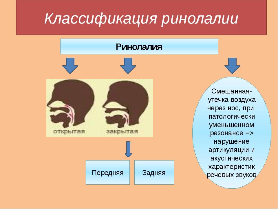 Классификация ринолалии Ринолалия Смешанная- утечка воздуха через нос, при па...