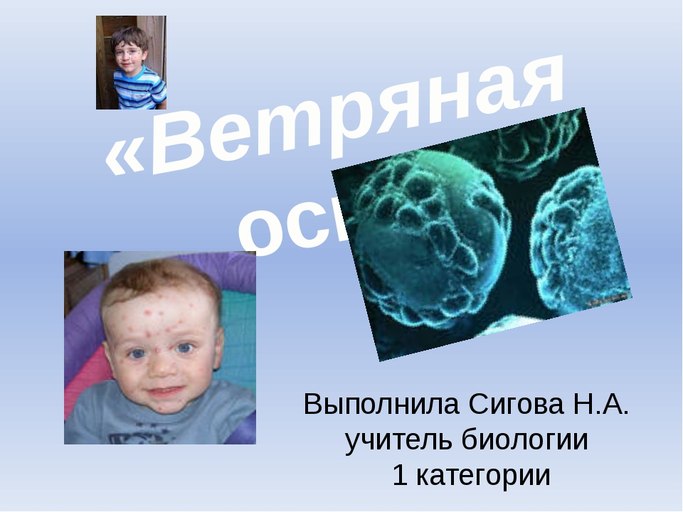 «Ветряная оспа» Выполнила Сигова Н.А. учитель биологии 1 категории