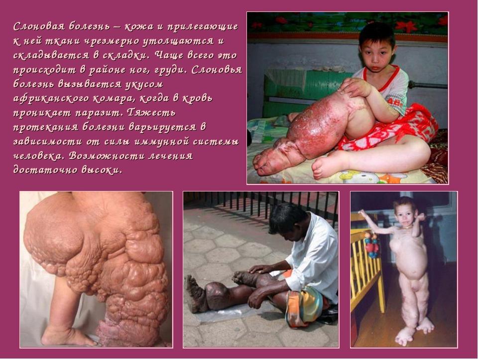 Слоновая болезнь– кожа и прилегающие к ней ткани чрезмерно утолщаются и скл...