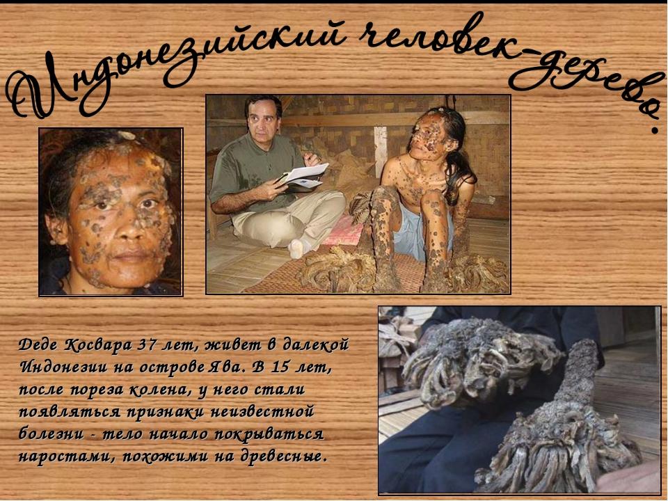 Tree-Man-02-300x200.jpg Деде Косвара37 лет, живет в далекой Индонезии на ост...