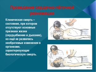 Проведение сердечно-лёгочной реанимации Клиническая смерть – состояние, при к