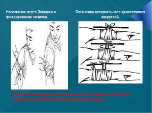 Категорически запрещается поверх жгута накладывать любой вид повязки, косынк