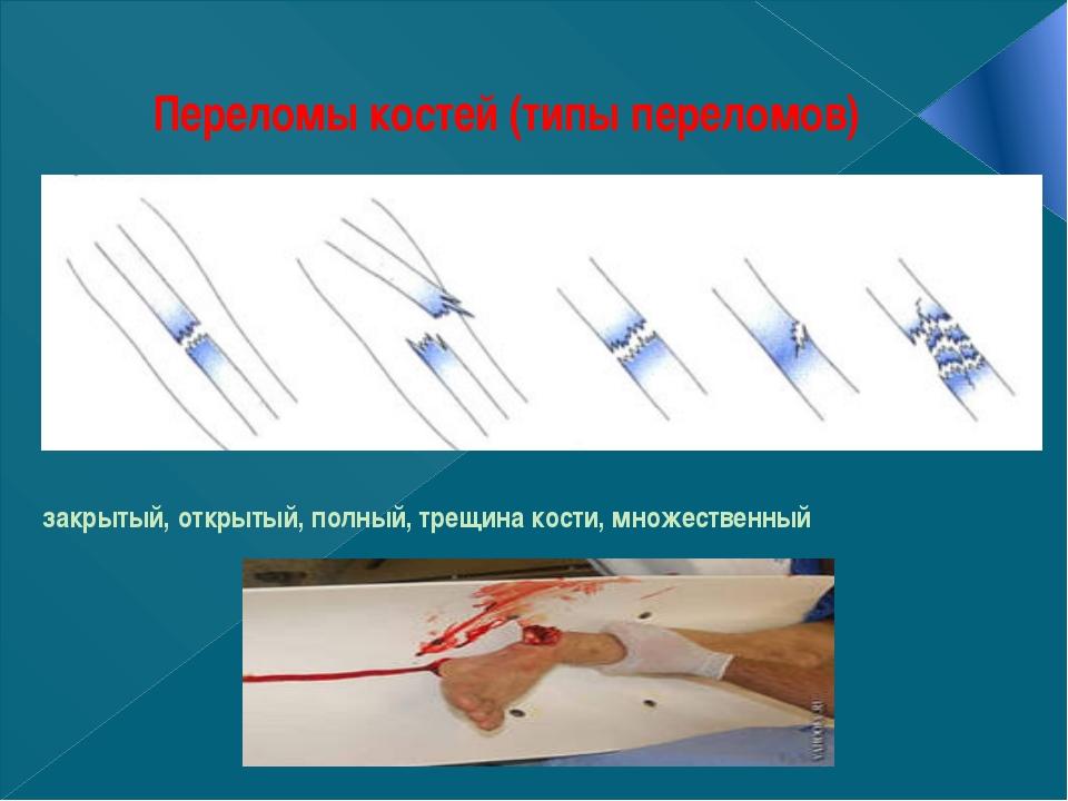 Переломы костей (типы переломов) закрытый, открытый, полный, трещина кости, м...