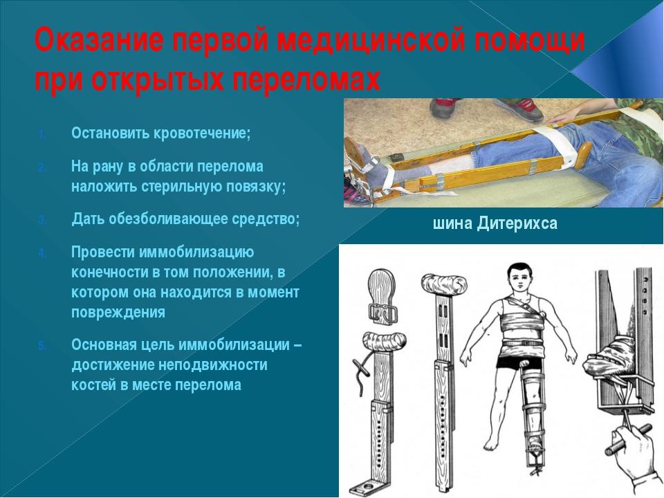 Оказание первой медицинской помощи при открытых переломах Остановить кровотеч...